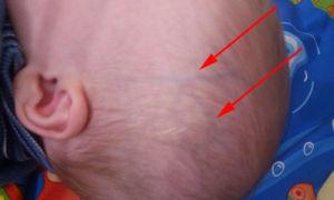 Почему видны вены на голове у новорожденного ребенка