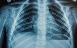 Как делают рентген детям, нужно ли и с какого возраста