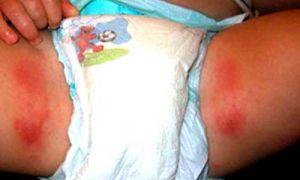 Опрелость между ног у ребенка: причины возникновения и как убрать