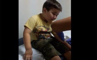 Реакция манту: норма у ребенка (фото)