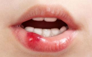 Ребенок разбил губу сильно, что делать и чем обработать