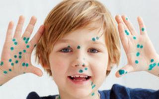 Чем и как отмыть зеленку после ветрянки у ребенка