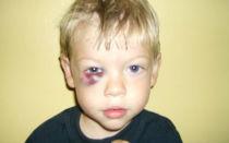 Ребёнок ударился глазом, что делать?
