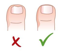 Правильно подстригаем ногти ребенку