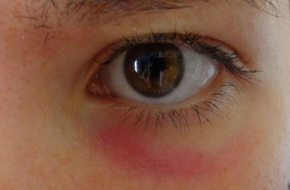 Красные круги под глазами