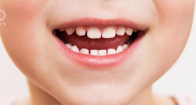 Зубы ребенка