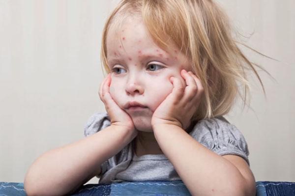 Ребенок болен корью