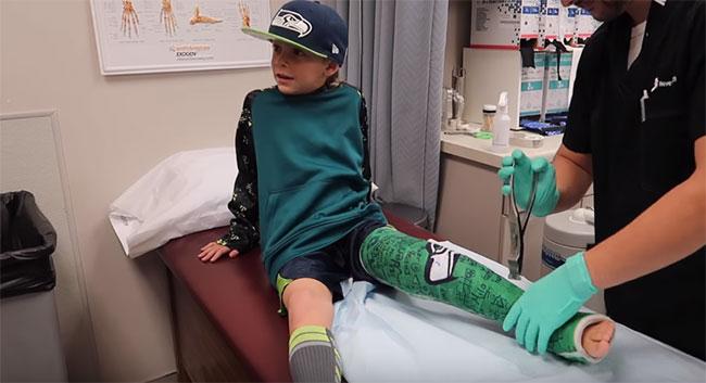 Мальчик упал болит нога thumbnail