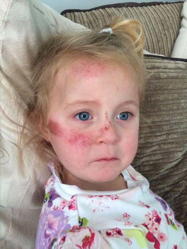 Девочка с разбитым носом