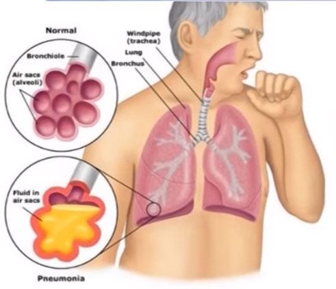 Пневмония что это