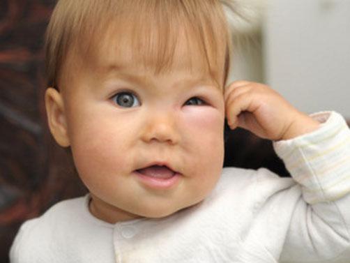 Ребенок с отеком Квинке