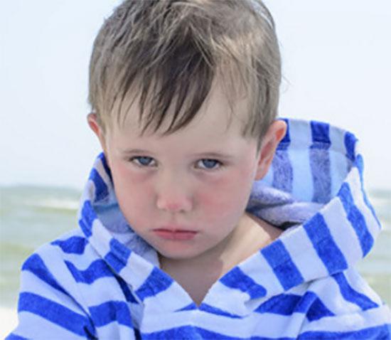 Мальчик с пятнами на лице