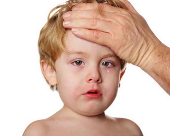 У ребенка слезятся покрасневшие глаза. Взрослый человек приложил свою руку ко лбу малыша, проверяет температуру