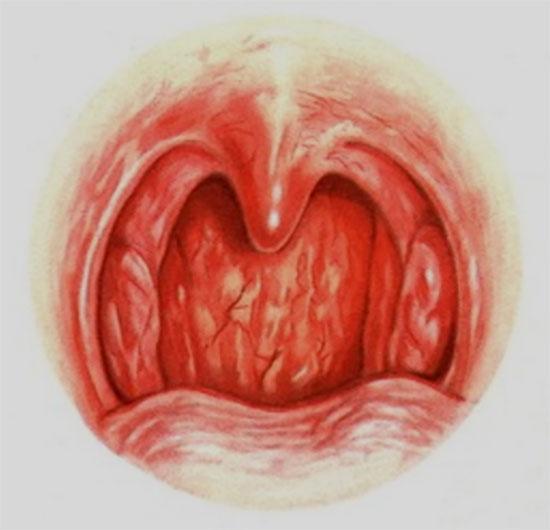 Картинка с изображением хронической формы фарингита