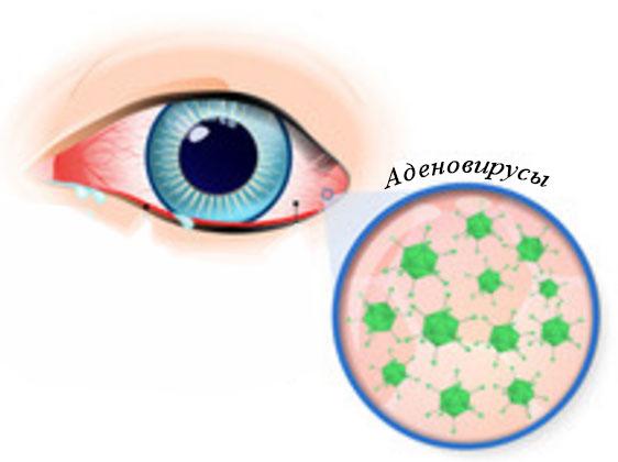 Инфицированный глаз и увеличенное изображение аденовирусов