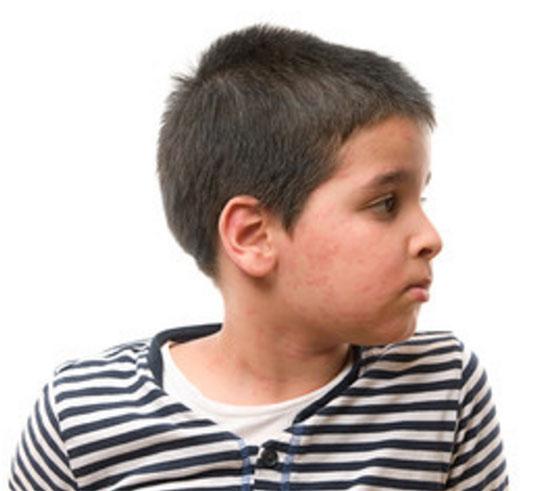 Крапивница у мальчика на лице