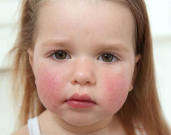 На щеках девочки диатез