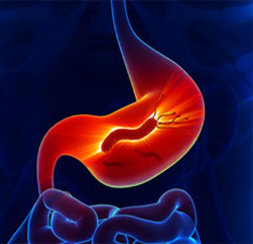 Изображение желудка с хеликобактериями, частично показан кишечник