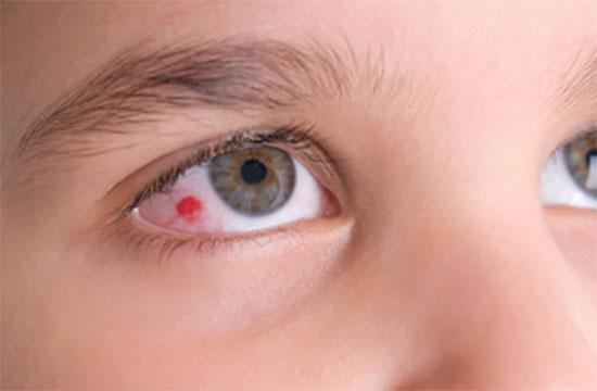 Ребенок с небольшим участком кровоизлияния в глазу