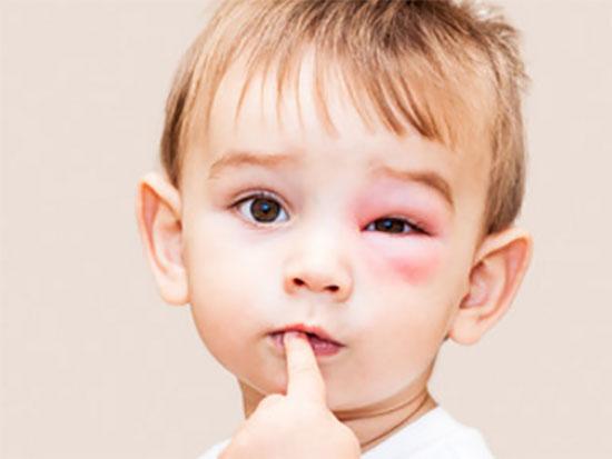 Ребенок с укусом осы возле глаза