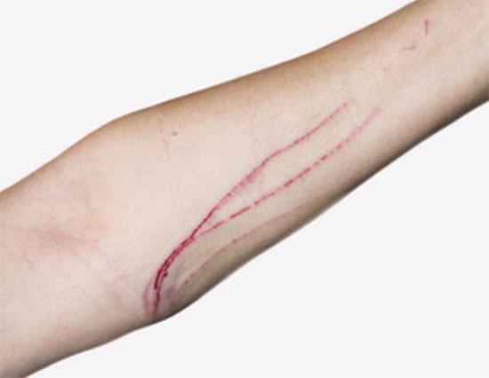 Длинные царапины на руке