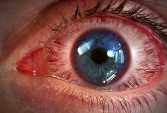 Сильно воспаленный глаз