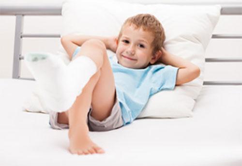 Ребенок с загипсованной ногой