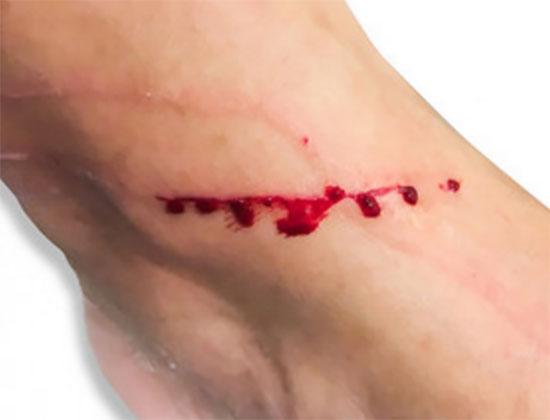 Расцарапанная нога, течет кровь
