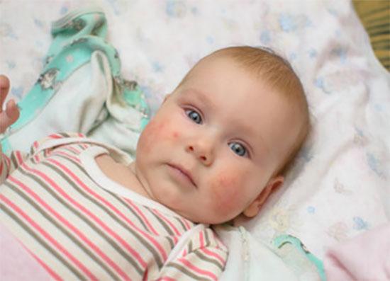 Грудной ребенок с сыпью на щеках