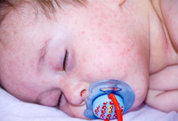 Лицо спящего ребенка с сыпью
