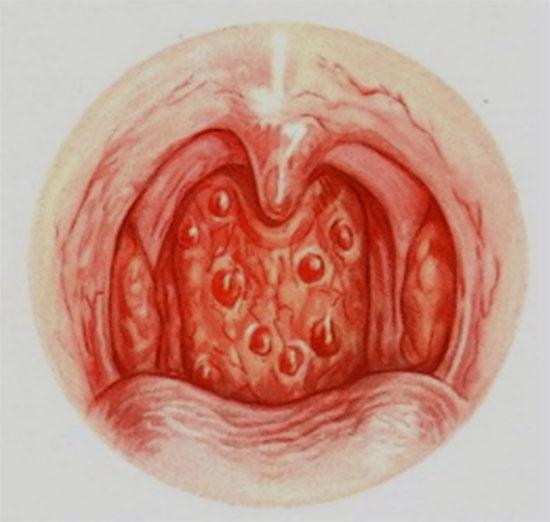 Картинка с изображением гранулезной формы фарингита