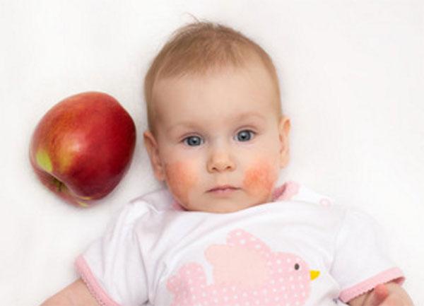Ребенок с красными щеками, рядом лежит красное яблоко