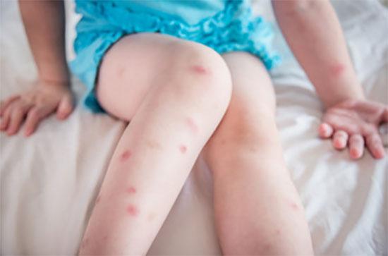 Покусанные ноги девочки