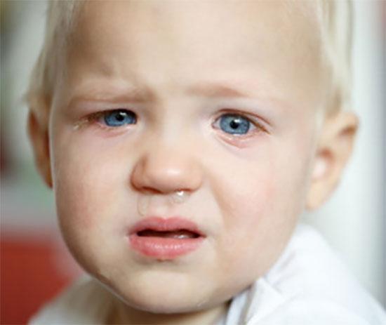У ребенка слизятся глаза и течет с носа