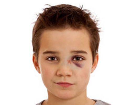 Мальчик с переломом носа и появлением синюшности под одним глазом