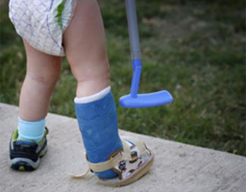 Маленький ребенок с загипсованной ножкой
