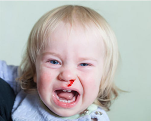 Девочка плачет. У нее идет кровь с носа