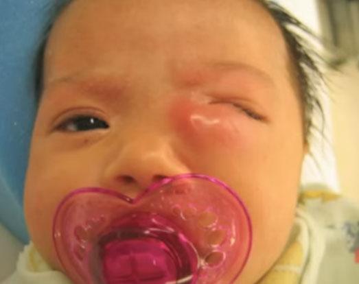 Ребенок с дакриоциститом на левом глазе