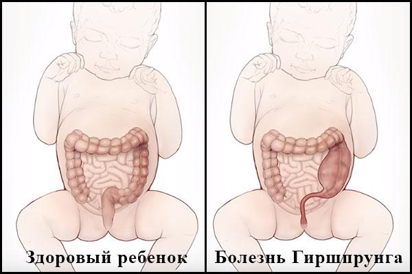Два изображения грудных детей с видимыми кишечниками: первый ребенок здоров, второй с болезнью Гиршпрунга