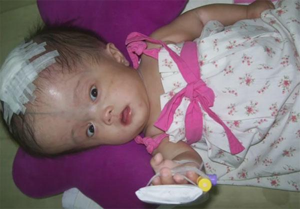 Грудничок с гидроцефалией, наложенной повязкой на голове