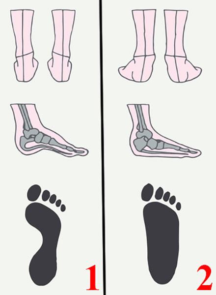 Схематическое изображение нормальной стопы и плоскостопия. Показан вид сзади, сбоку (видны кости) и отпечаток