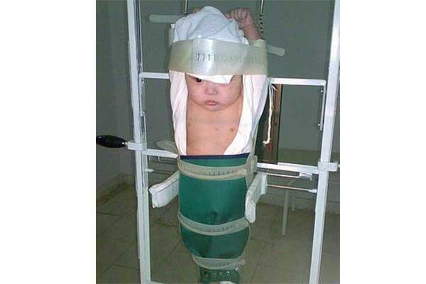 Четырехмесячный малыш зафиксирован в подвешенном состоянии. Надета защита. Голая грудная клетка - область проведения снимка