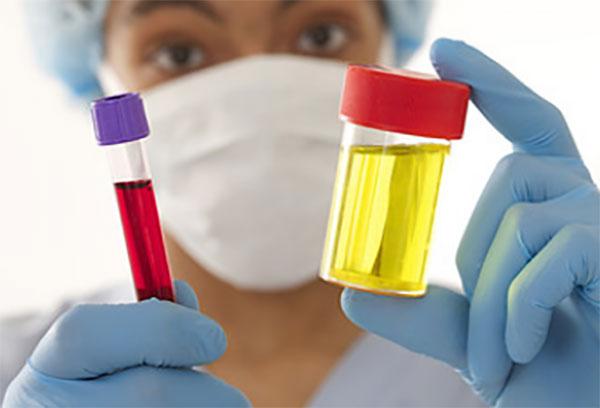 Лаборант держит в руках пробирку с кровью и резервуар с мочой