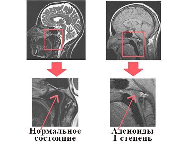 Рентгеновские снимки черепа с увеличением области носоглотки: норма и аденоиды 1 степени