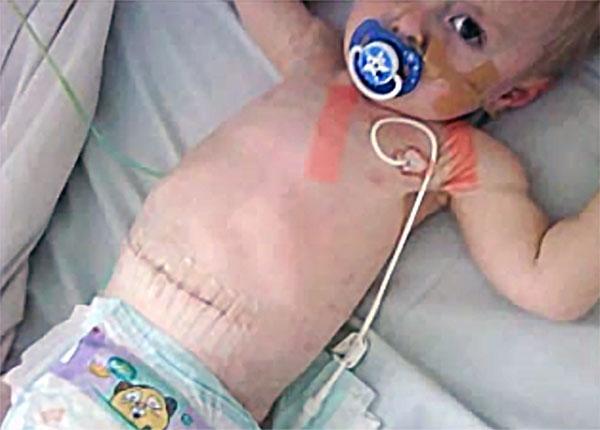 Малыш после операции