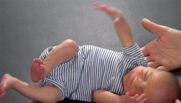 Новорожденный с ДЦП