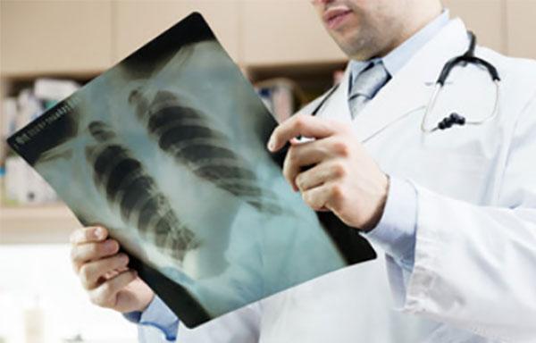 Врач держит в руках рентгеновский снимок легких