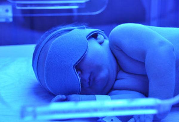 Грудной ребенок лежит в кювете под синей лампой