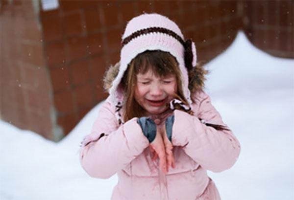 Псориаз у детей: начальная стадия, фото