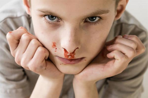 Мальчик с носовым кровотечением сидит с наклоненной головой вперед